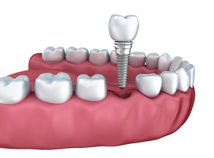 Stem-Cell Dental Implants Grow New Teeth in Your Mouth