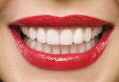 The Surprising Link Between Your Weight and Your Teeth
