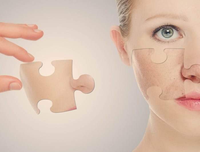 Peeling Isn't Just Skin Dryness. It Can Be Way More Than It!