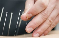 Here's Everything You Need to Know About Dry Needling