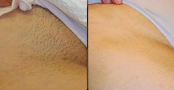 Remove Unwanted Hair Permanently At Home Permanently (No Waxing or Shaving)