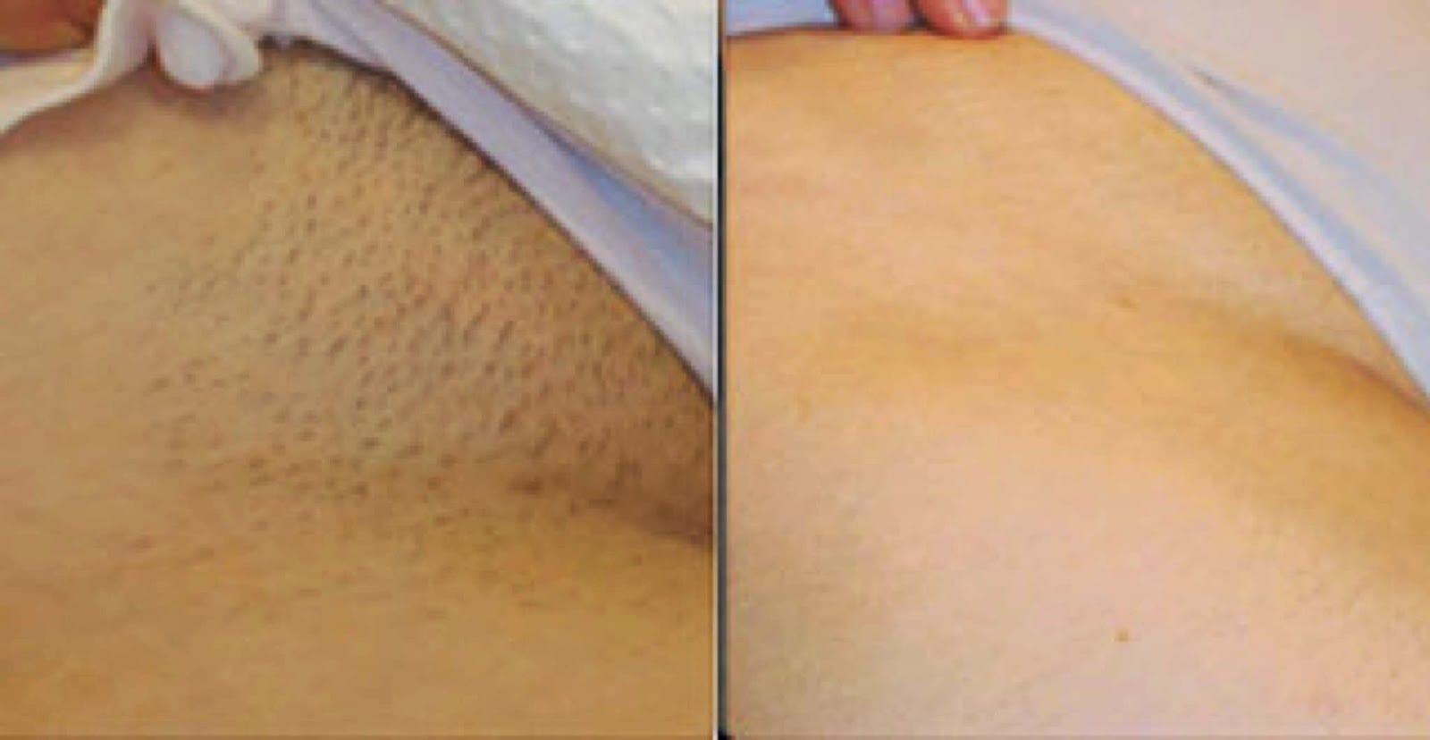 Remove Unwanted Hair Permanently - 74.7KB