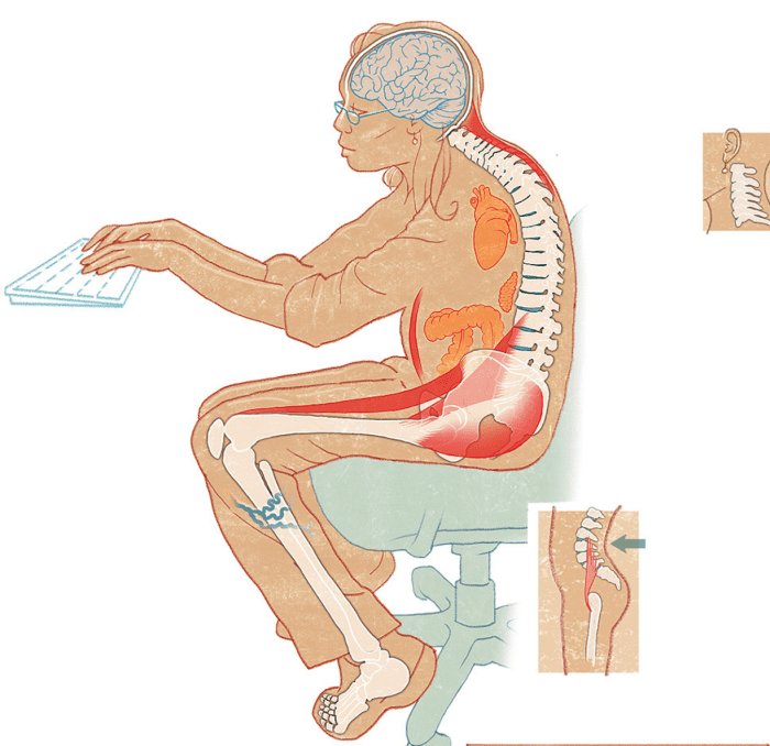 Find Out What Poor Posture May Be Doing to Your Body