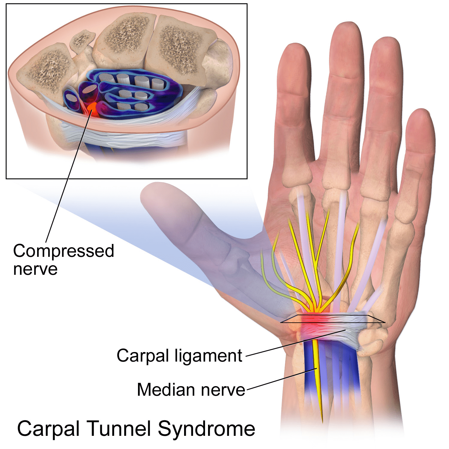 natural ways to ease carpal tunnel syndrome | instiks, Cephalic Vein