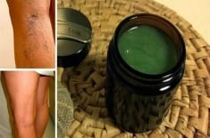 Mother Heals Varicose Veins With This Simple Recipe From Old Granny. The Results Are Almost Imme ...