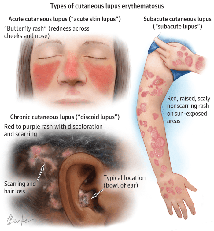13 Early Warning Signs of Lupus You Need to Know (and what to do the moment you see them)