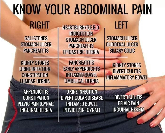 Find Out The Cause Of Your Stomach Pain With This Belly Map