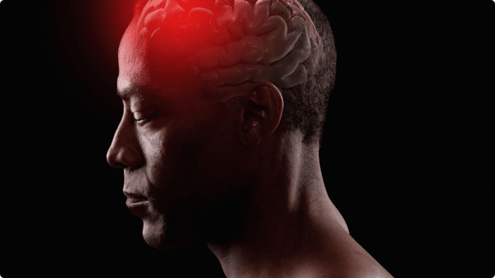 Are You At Risk of Having a Fatal Brain Aneurysm?