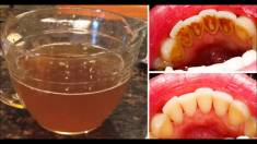 Study: This NATURAL Tea Removes Plaque Better Than Commercial Mouthwash!
