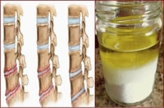Salt And Oil: Medicine Mixture. After Its Application, You Will Not Feel Pain For Several Years