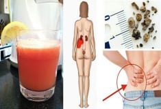 How To Make The Most Powerful Juice That Naturally Removes Kidney Stones And Gallstones!