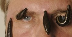 The Health Benefits of Medicinal Leech Therapy