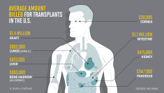 Here's What Every Organ in the Body Would Cost to Transplant