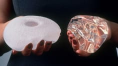 What to Know About the Breast Implants Linked to Cancer