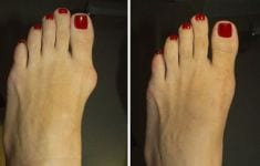 5 Ways to Ease Your Bunions Without Surgery