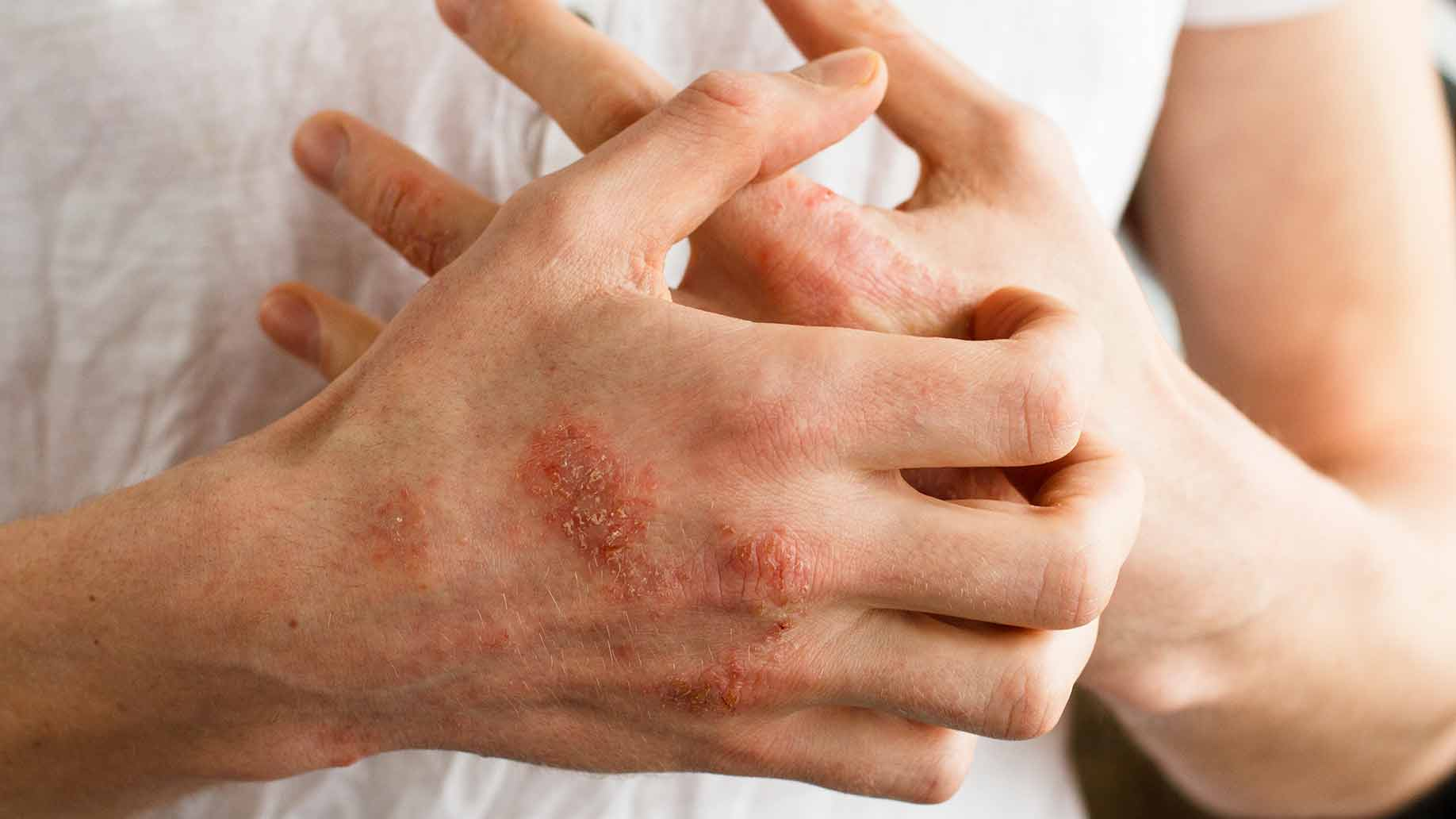 psoriasis patches
