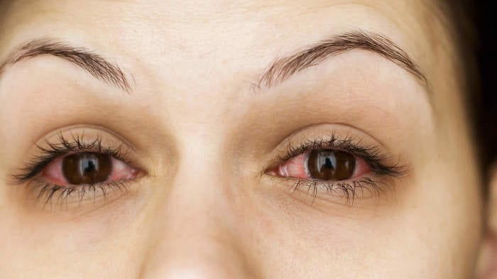 11 Reasons You Have Puffy Eyes—And How to Fix Them
