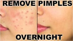 Natural Remedies to Get Rid of Pimples Overnight Fast