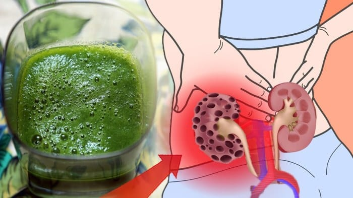 HOW TO CLEANSE YOUR KIDNEYS ALMOST INSTANTLY USING THIS NATURAL HOME DRINK