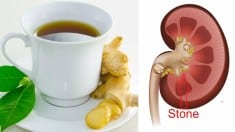 Prepare Ginger Tea in This Way To Remove Kidney Stones, Detox Liver And Kill Cancer