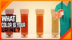WHAT THE COLOR OF YOUR URINE REVEALS ABOUT YOUR HEALTH