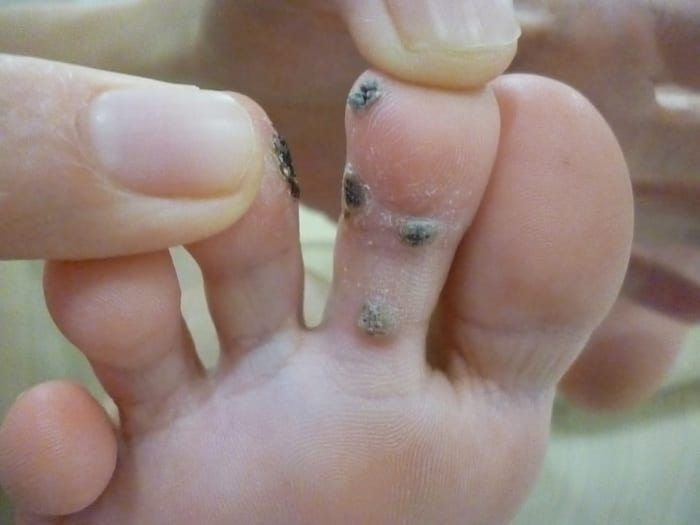 If You Want To Get Rid of Warts, You Should Do This!