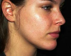 Skin acne – Symptoms, Causes