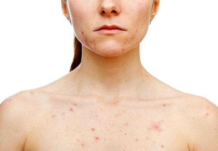Body Acne – Types, Symptoms and Causes