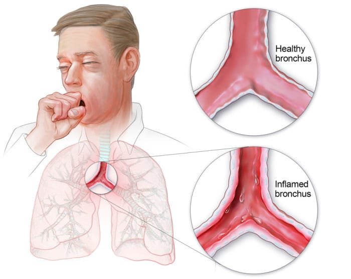 Bronchitis – top effective home remedies and natural cures