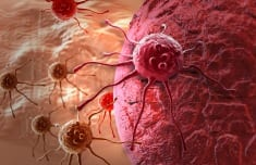 25 Cancer Stem Cell Killing Foods That Are Smarter Than Chemo and Radiation