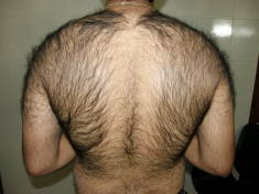 Excess Body hair – Causes, symptoms and risk factors