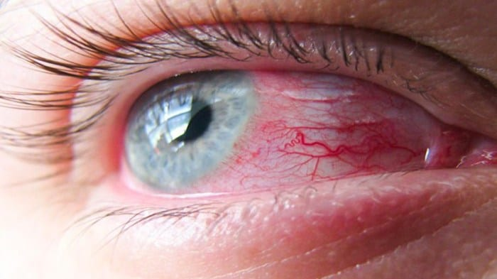 Eye infection home remedy