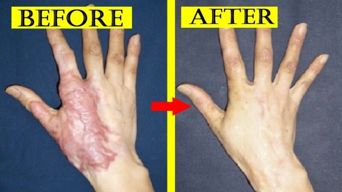 Home Remedies and Natural cures for Skin Burns