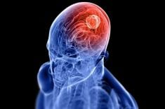 Brain Tumor – Symptoms, Risk factors and different types