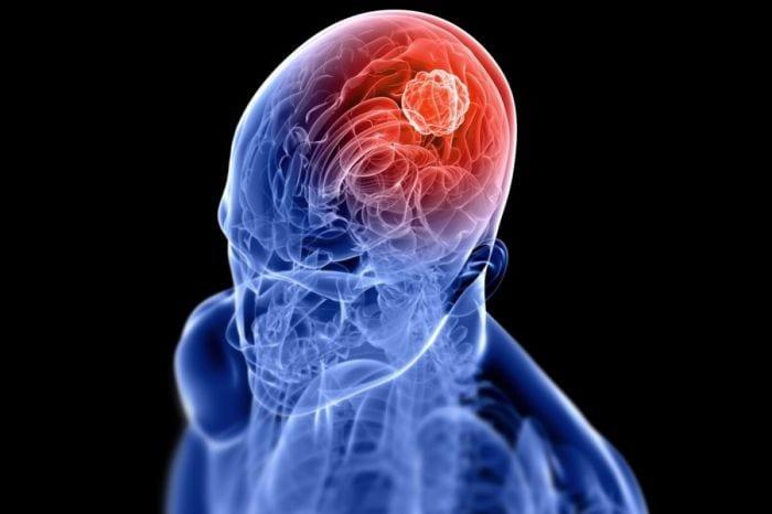 Brain Tumor – Symptoms, Risk factors and different types