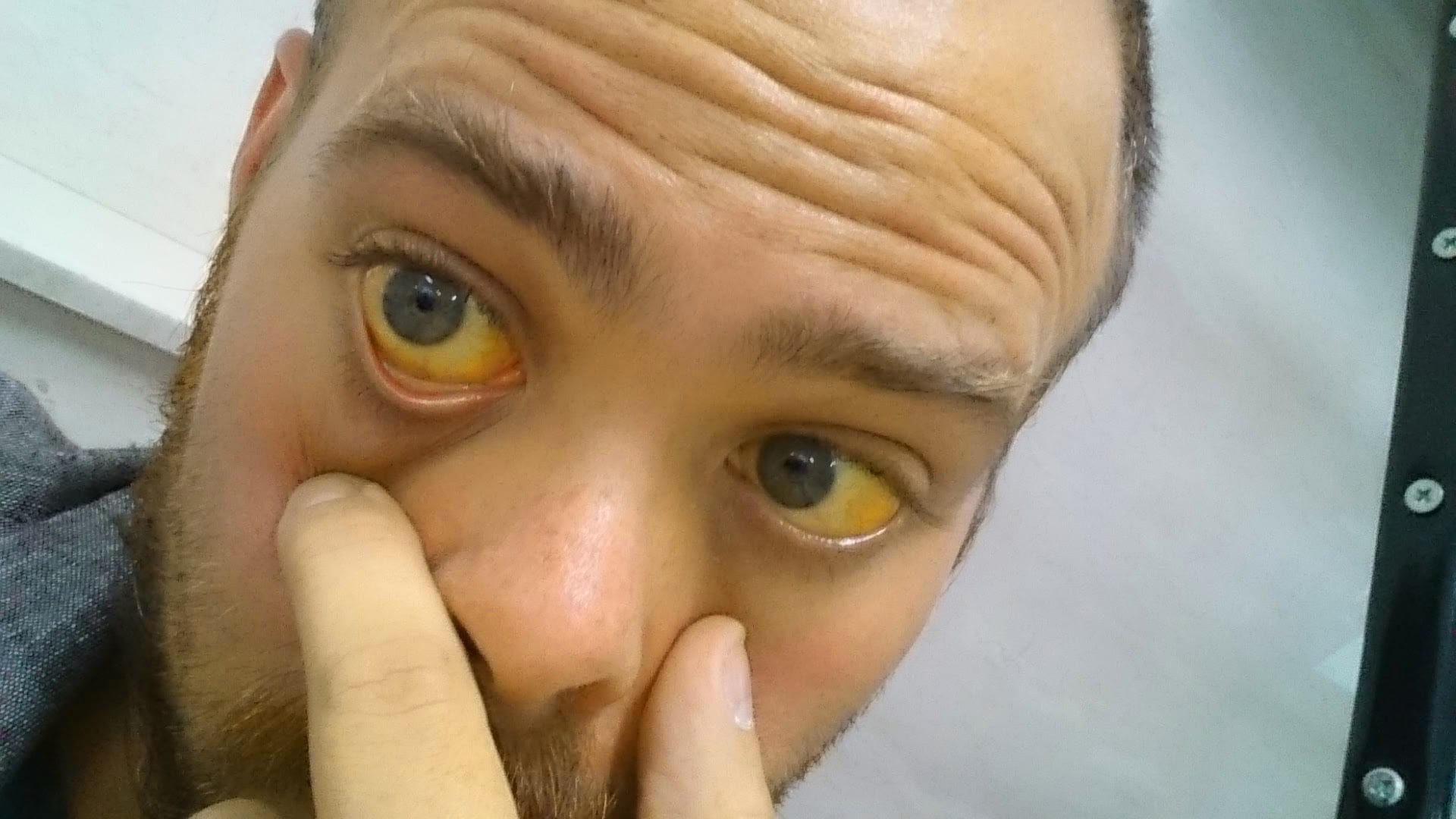 Jaundice Symptoms Causes And Other Risk Factors