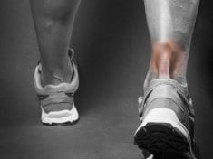 Achilles tendon Home Remedy and other natural cures