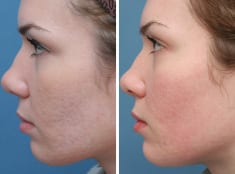 Remove Body Scars In Less Than Month