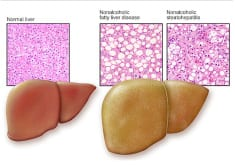 Fatty liver – Symptoms, causes, types and other risk factors