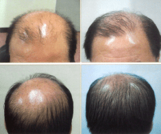 Natural methods to cure baldness and hair regrowth
