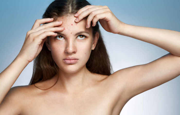 Acne Scars are Harmful: Get Flawless Beauty