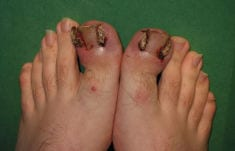 Ingrown toenails / fingernails – symptoms and causes