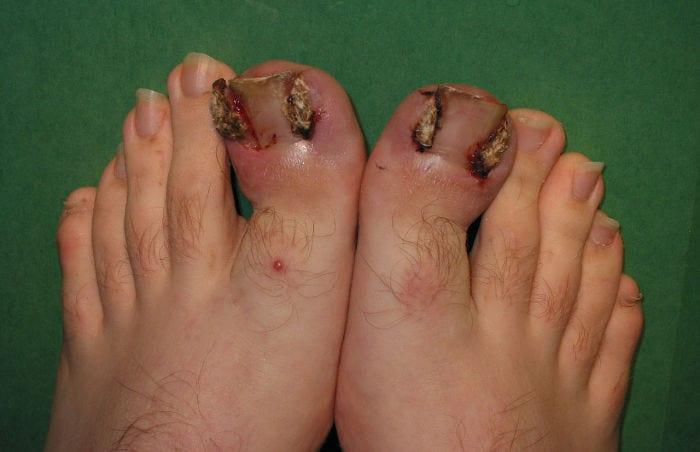 Ingrown toenails / fingernails – symptoms and causes