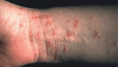 Scabies – Symptoms, Causes and other related complications