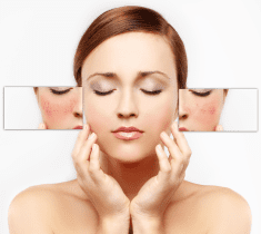Hyperpigmentation Treatment: Patch up Your Skin