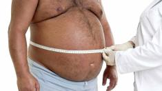 Obesity – Causes and Risk factors associated with it