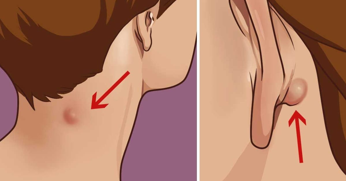 Here Is How To Treat A Sebaceous Cyst Or Epidermoid Cyst Naturally