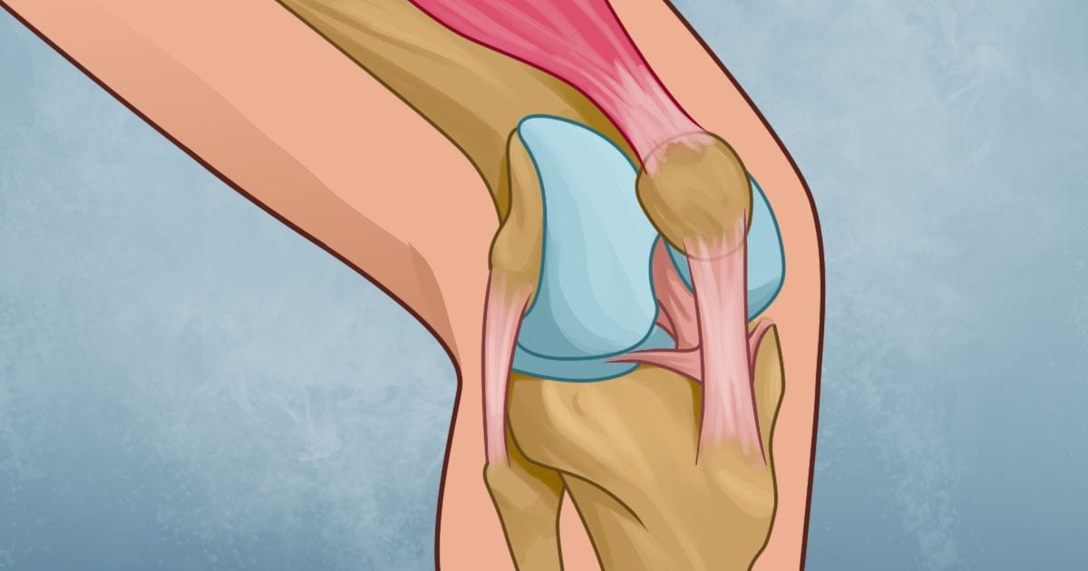 How to cure pain in the knee