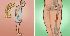 Osteoporosis: risk factors, symptoms and treatment